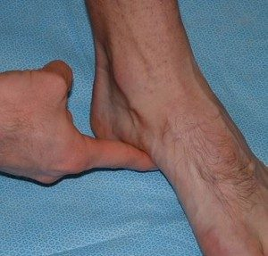 Supination Resistance